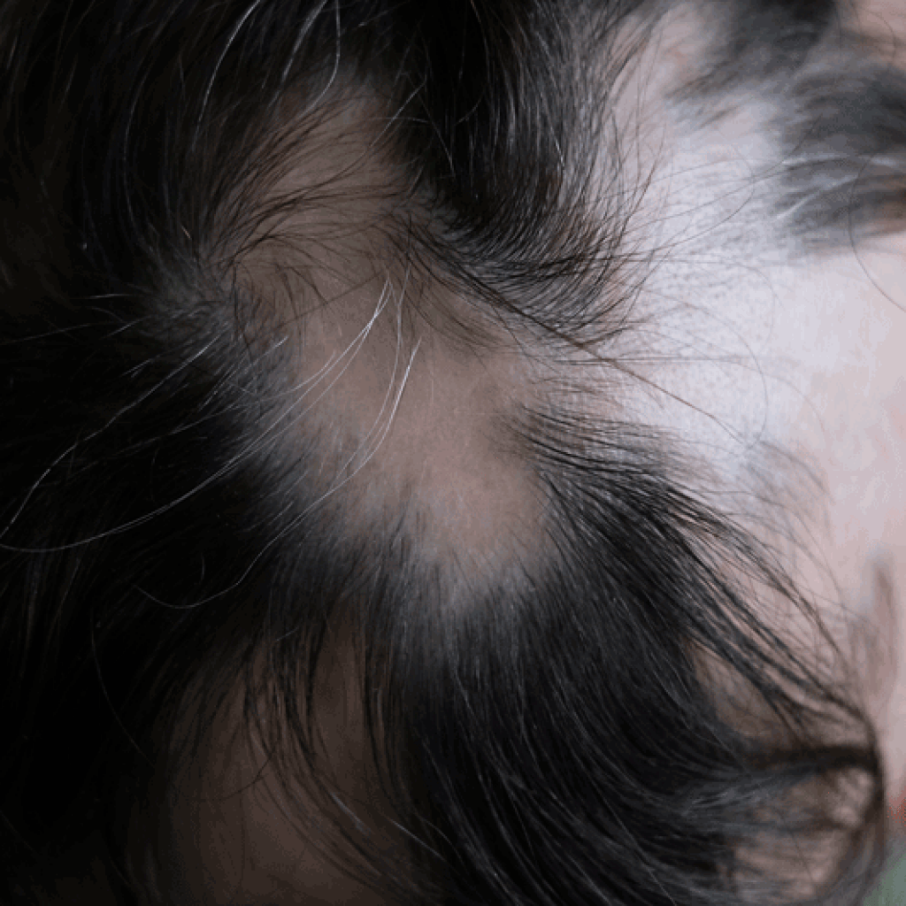11 signs of regrowth in alopecia areata  Lady Alopecia